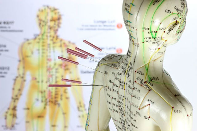 acupuncture in paris - meridiens
